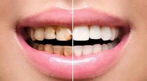 طرق طبيعية للتخلص من آلام الأسنان