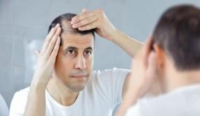 6 أسباب تؤدي إلى تساقط الشعر المفاجئ